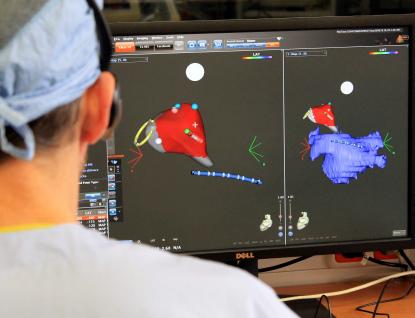 Nový přístroj pomůže pacientům sfibrilací síní