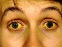 Lékař radí: Žloutenka může probíhat i zcela bez příznaků, testování není od věci